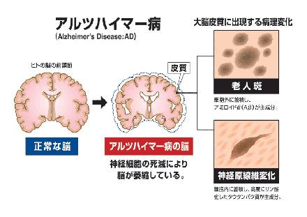 アルツハイマー脳