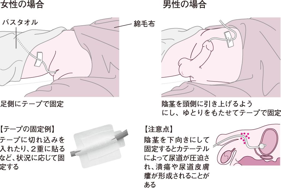 膀胱留置カテーテル
