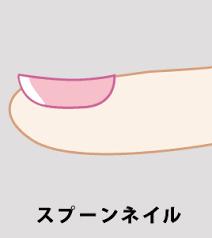 スプーン爪