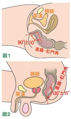 直腸肛門角