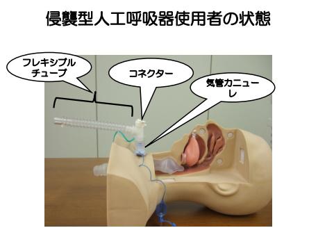 侵襲型人工呼吸器